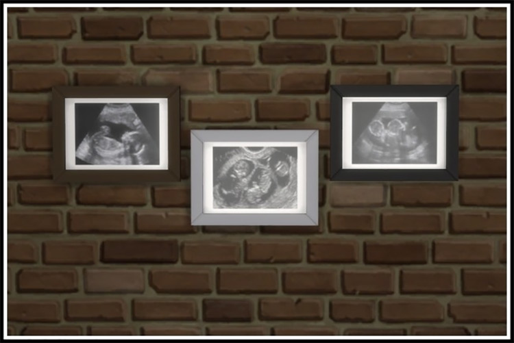 Ultrasound Scan by littlemssam Sims 4 CC